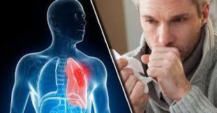 Как устранить слизь, мокроту из горла и груди
