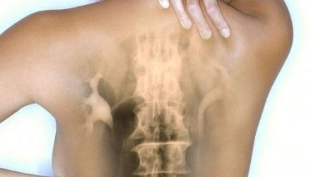 «Осевший» позвоночник — невидимая причина наших болезней