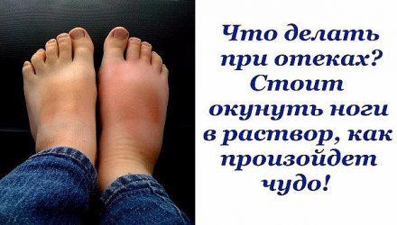 Опухшие ноги — больше, чем простая неприятность