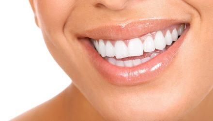 5 очень простых рецептов белоснежной улыбки